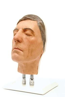 Model af hoved til ansigts injektioner, version D
