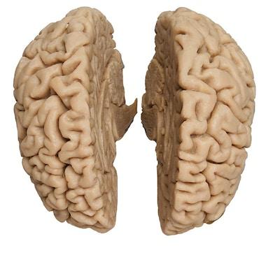 Støbt model af hjerne