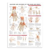 Plakat om hånden og håndleddets anatomi & lidelser på engelsk