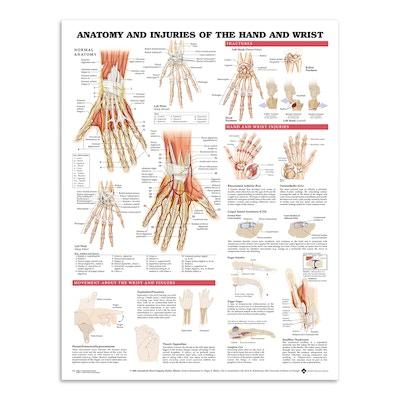 Anatomi & skader i hånd & håndledd (plakat på engelsk)