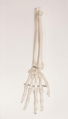 Model af håndens skelet samt begge underamrsknogler
