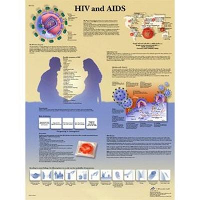 Lamineret plakat om HIV og AIDS med tekst på engelsk (inkl. ringhuller)