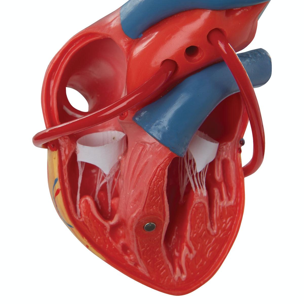 Hjertemodel der viser resultatet efter en bypass-operation