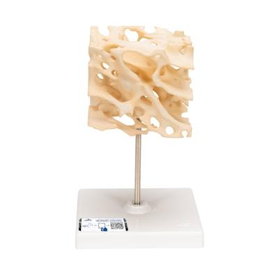 Cancelløs knogle model, 100 gange forstørret