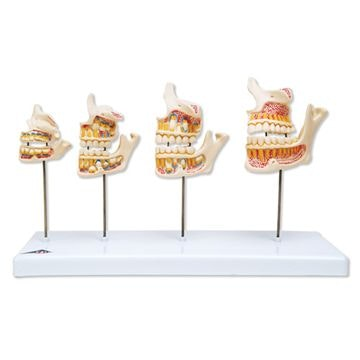 Tandsættets udvikling. Sæt af 4 stadier