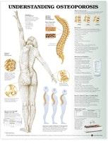 Forstå osteoporose laminerad engelska