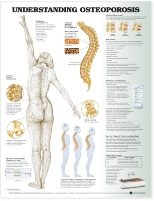 Lamineret plakat om osteoporose (knogleskørhed) på engelsk