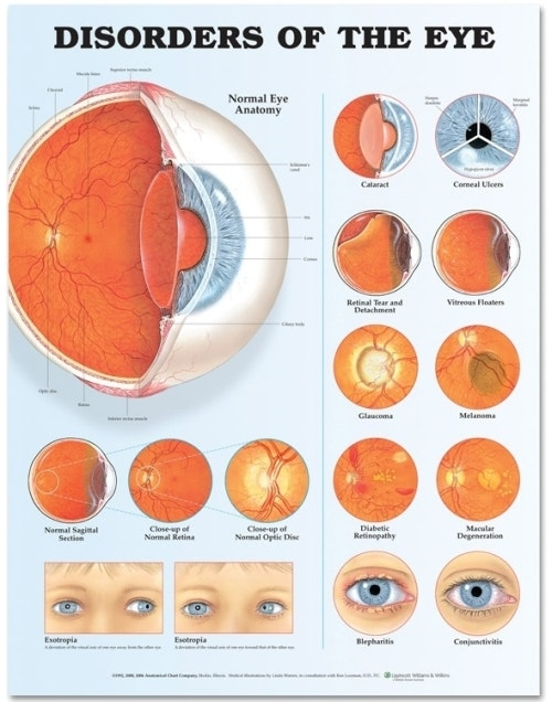 Øjensygdomme lamineret plakat engelsk (Disorders of the Eye)