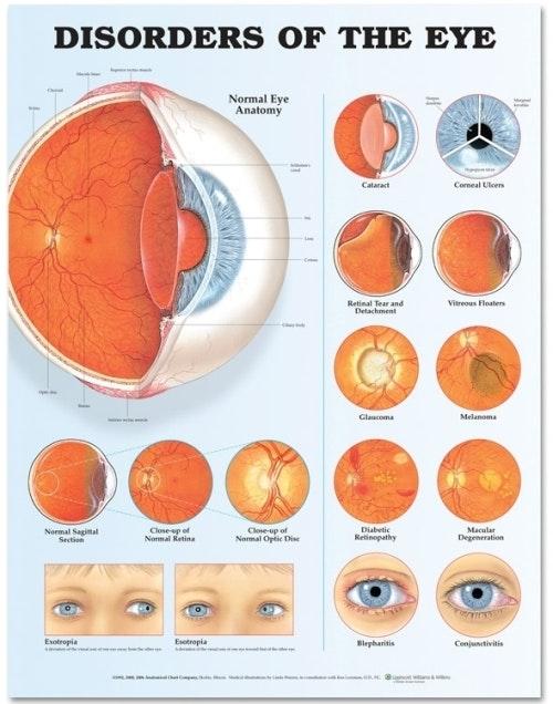 Lamineret plakat om øjensygdomme på engelsk