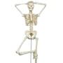 Skeletmodel med meget bevægelig rygsøjle, spinalnerver, a. vertebralis og en diskusprolaps