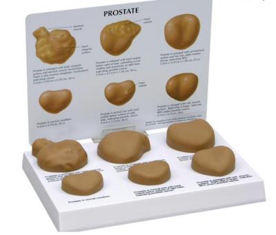Prostata model