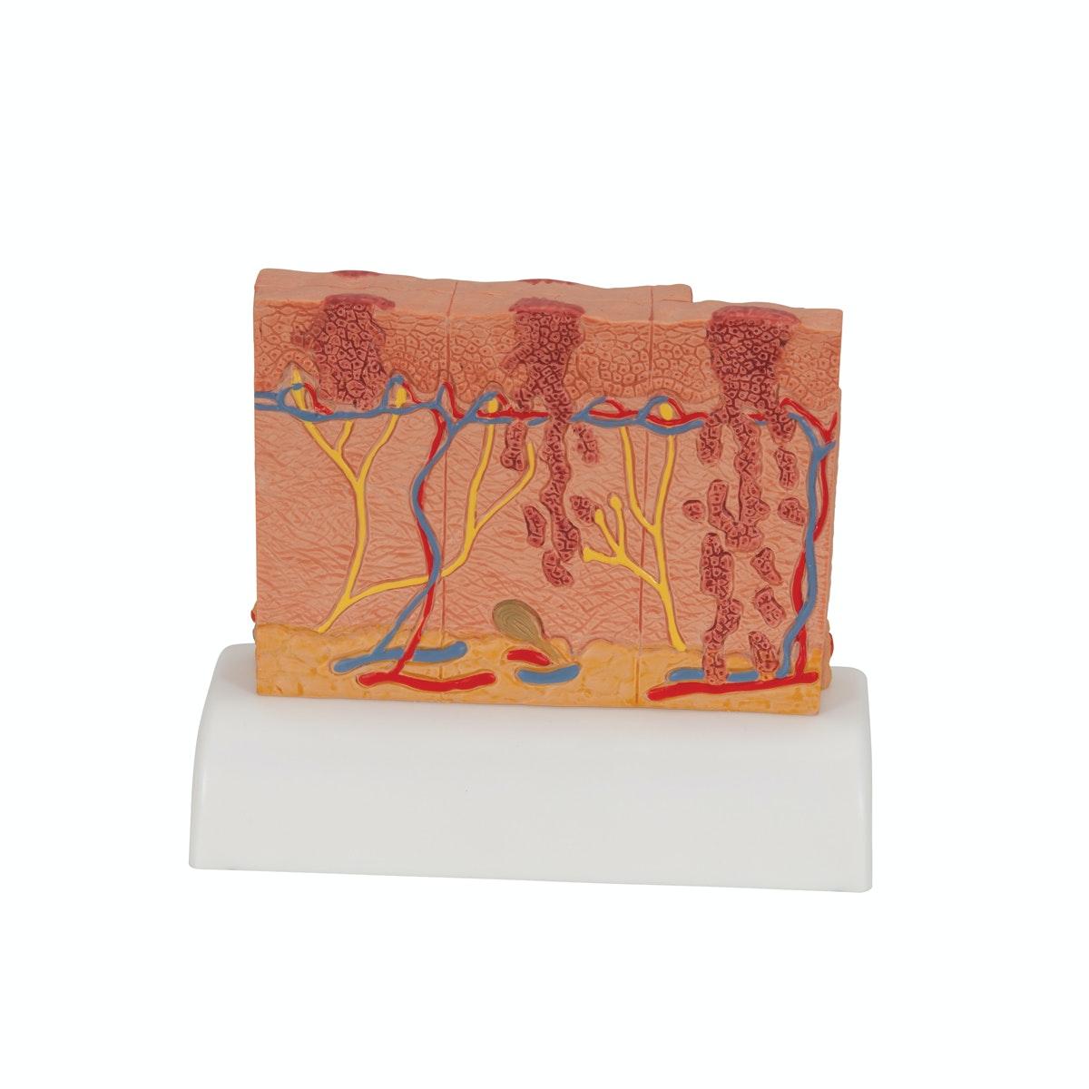 Særlig pædagogisk model af modermærkekræft i forskellige stadier