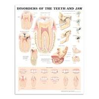 Sykdommer i tenner & kjeve laminert plakat engelsk