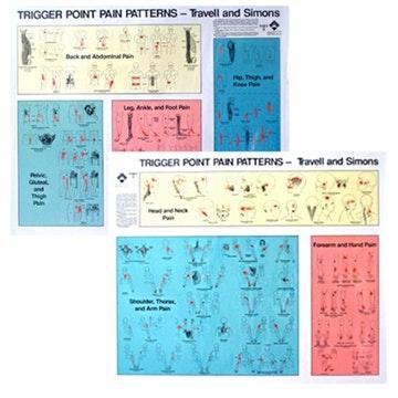 Triggerpoint pain patterns sæt af Travell & Simons