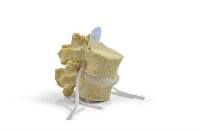 Lumbar Spinal Stenosis Dynamic Disc Model