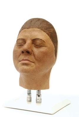 Model af hoved til ansigts injektioner, version F