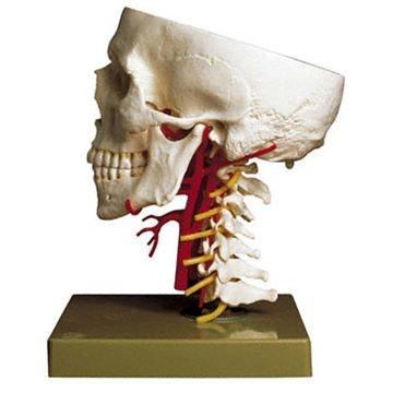 SOMSO Kraniebund med arterier