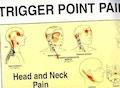 """Sæt af 2 plakater om """"triggerpoint pain patterns"""" på engelsk"""