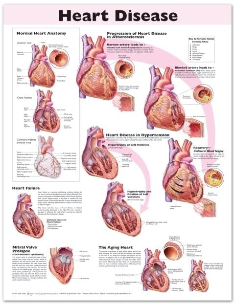 Hjertesygdomme engelsk lamineret (Heart Disease)