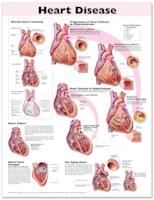 Lamineret plakat om hjertesygdomme på engelsk