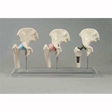 Model af hofteimplanatat - 3 mini hoftemodeller på plexiglas
