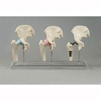 3 formindskede hoftemodeller inkl. hofteprotese på stander med plexiglas-fod