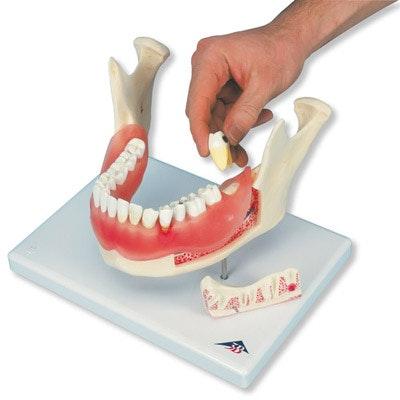 Underkæbe med tandsygdom forstørret 2 gange i 21 dele