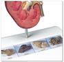 Nyremodel som viser sten forskellige steder i nyren