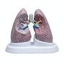 Model af lunger med patologier