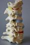 Dynamisk rygledsmodel af halshvirvelsøjlen der viser forskellige konsekvenser af degeneration