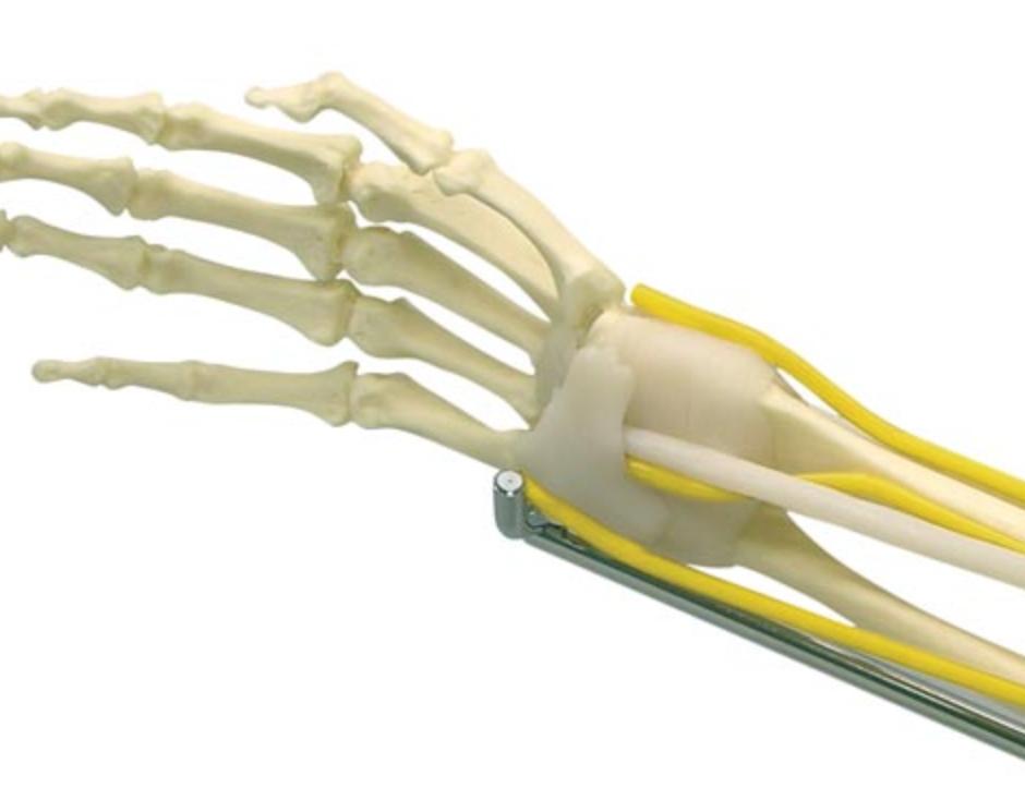 Albuemodel med muskler og nerver samt underarm og hånd