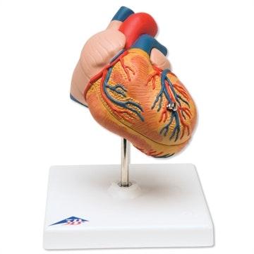 Klassisk hjerte med venstre ventrikulær hypertrophy (VVH), 2 dele