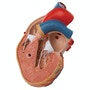 Formindsket hjertemodel med venstre ventrikulær hypertrofi og belastning