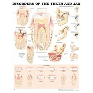 Sygdomme i tænder & kæbe lamineret plakat engelsk (Disorders of the teeth & jaw)