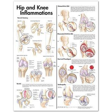 Lamineret plakat om betændelse i hoften & knæet på engelsk