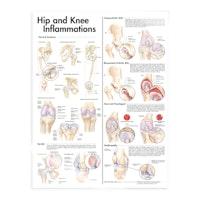 Inflammation i höft och knä laminerad plansch engelska