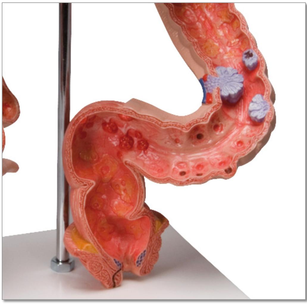 Model af tyktarmen med påvisning af flere forskellige sygdomme