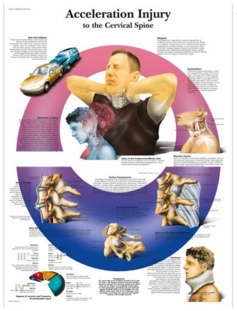 Lamineret plakat om skader i halshvirvelsøjlen på engelsk