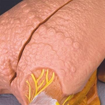 Forstørret tungemodel med papiller, 2 mundspytkirtler og lidt af under-kæben. Kan adskilles i flere dele