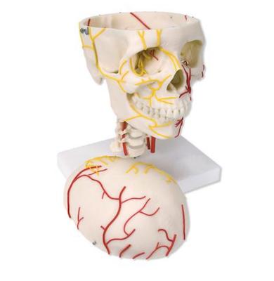Neurovaskulær kranie model