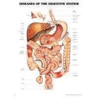 Lamineret plakat om lidelser i fordøjelsessystemet på engelsk
