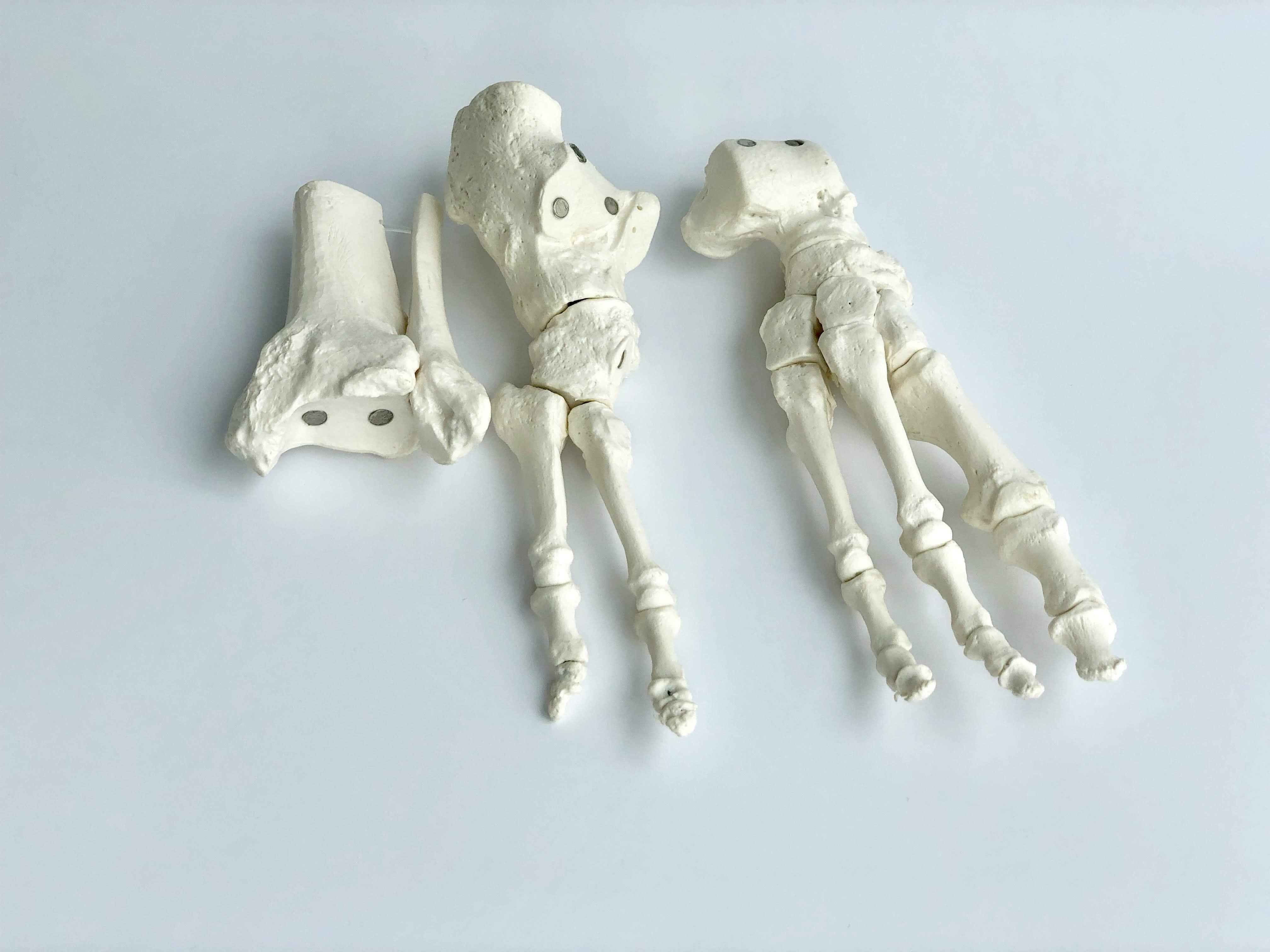 Model af fodens skelet samt lidt af skinne- og lægbenet. Alle knoglerne kan skilles ad
