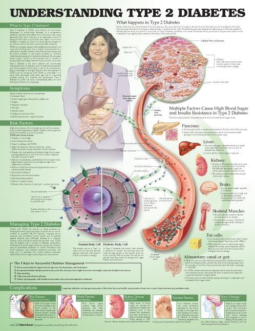 Forstå type 2 diabetes (Understanding Type 2 Diabetes) lamineret plakat