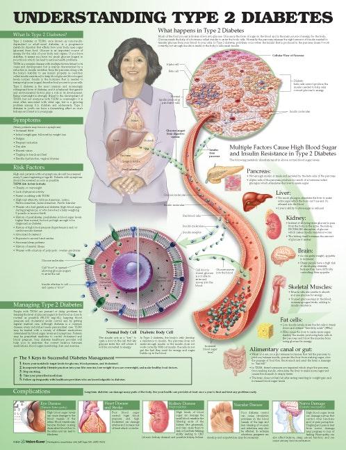 Lamineret plakat om type 2 diabetes (sukkersyge) på engelsk