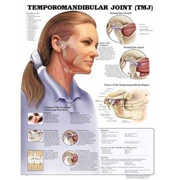 Temporomandibular ledsygdom (TMJ) lamineret plakat engelsk med ringhuller