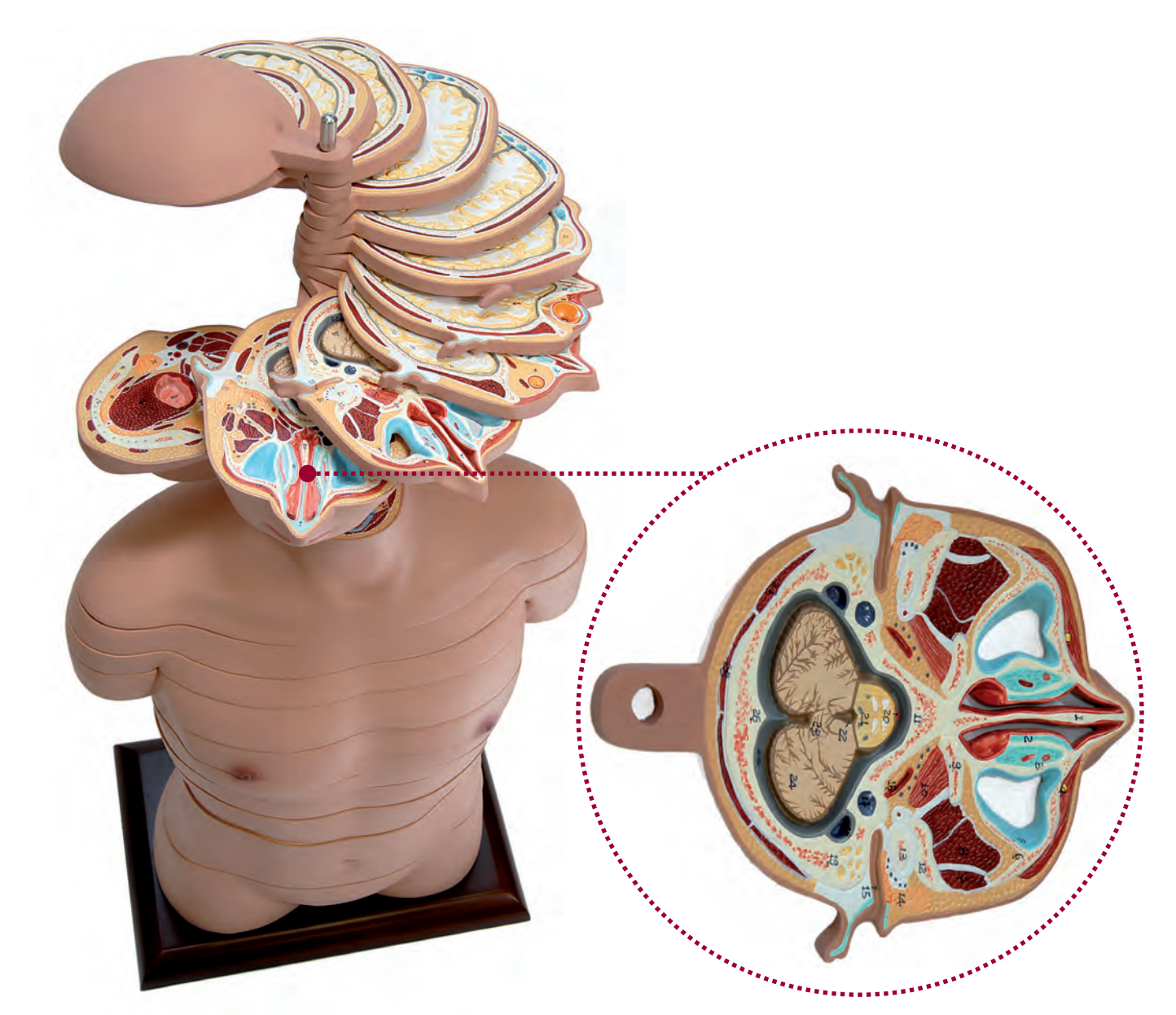 Avanceret og fleksibel MRI torso med 24 snitflader præsenteret på stander