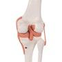 Klassisk og fleksibel knæmodel med ledbånd