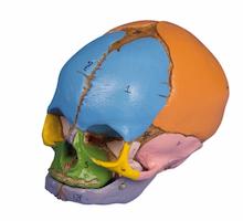 Model af et fosterkranie med fontaneller og farvet knogler svarende til graviditetsuge 38