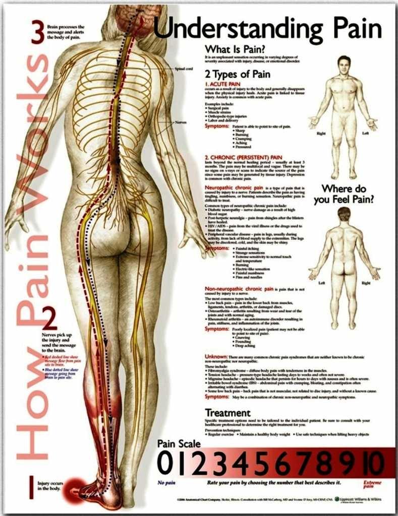 Forstå smerte engelsk lamineret (understand pain)