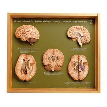 SOMSO Fem sektioner af hjernen